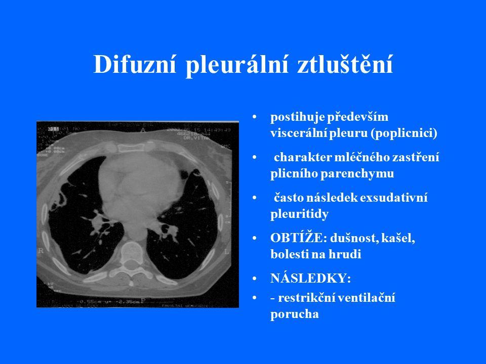 Difuzní pleurální ztluštění postihuje především viscerální pleuru (poplicnici) charakter mléčného zastření plicního parenchymu často následek exsudativní pleuritidy OBTÍŽE: dušnost, kašel, bolesti na hrudi NÁSLEDKY: - restrikční ventilační porucha