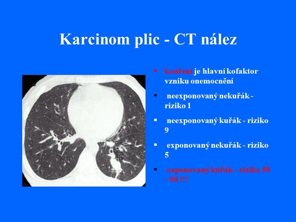Karcinom plic - CT nález  kouření je hlavní kofaktor vzniku onemocnění  neexponovaný nekuřák - riziko 1  neexponovaný kuřák - riziko 9  exponovaný nekuřák - riziko 5  exponovaný kuřák - riziko 50 - 90 !!!