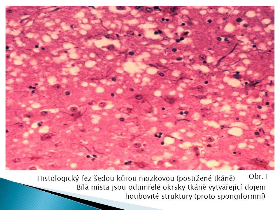 Histologický řez šedou kůrou mozkovou (postižené tkáně) Bílá místa jsou odumřelé okrsky tkáně vytvářející dojem houbovité struktury (proto spongiformní) Obr.1