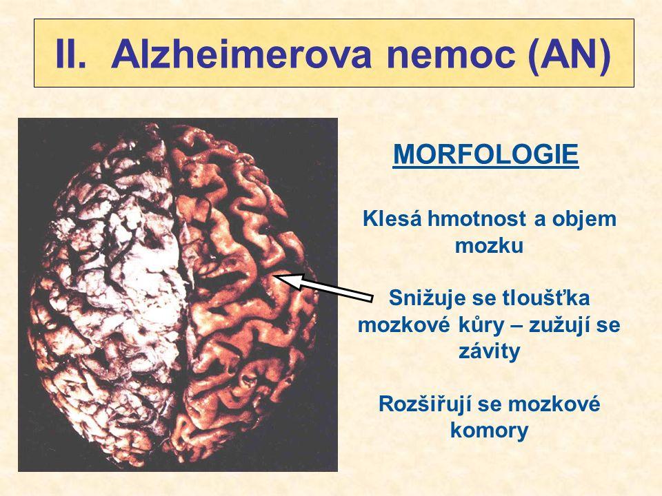 II. Alzheimerova nemoc (AN) MORFOLOGIE Klesá hmotnost a objem mozku Snižuje se tloušťka mozkové kůry – zužují se závity Rozšiřují se mozkové komory