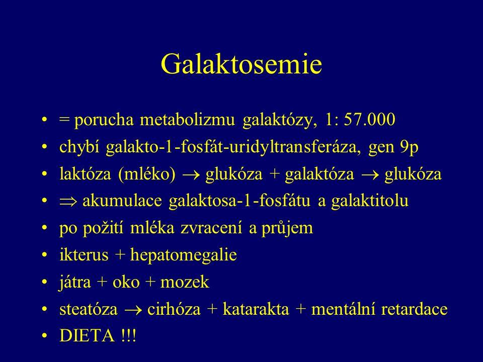 Galaktosemie = porucha metabolizmu galaktózy, 1: 57.000 chybí galakto-1-fosfát-uridyltransferáza, gen 9p laktóza (mléko)  glukóza + galaktóza  glukóza  akumulace galaktosa-1-fosfátu a galaktitolu po požití mléka zvracení a průjem ikterus + hepatomegalie játra + oko + mozek steatóza  cirhóza + katarakta + mentální retardace DIETA !!!
