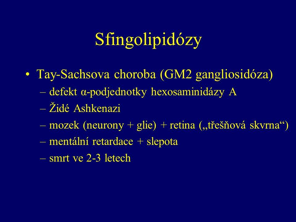 """Sfingolipidózy Tay-Sachsova choroba (GM2 gangliosidóza) –defekt α-podjednotky hexosaminidázy A –Židé Ashkenazi –mozek (neurony + glie) + retina (""""třešňová skvrna ) –mentální retardace + slepota –smrt ve 2-3 letech"""