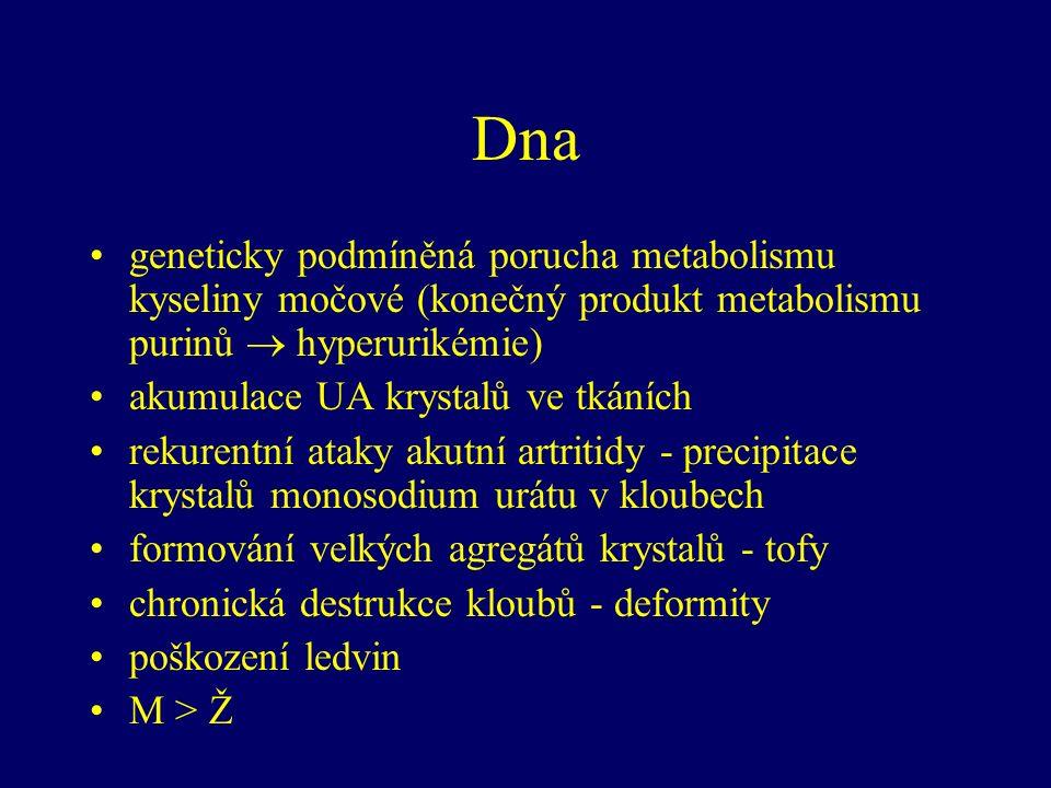 Dna geneticky podmíněná porucha metabolismu kyseliny močové (konečný produkt metabolismu purinů  hyperurikémie) akumulace UA krystalů ve tkáních rekurentní ataky akutní artritidy - precipitace krystalů monosodium urátu v kloubech formování velkých agregátů krystalů - tofy chronická destrukce kloubů - deformity poškození ledvin M > Ž