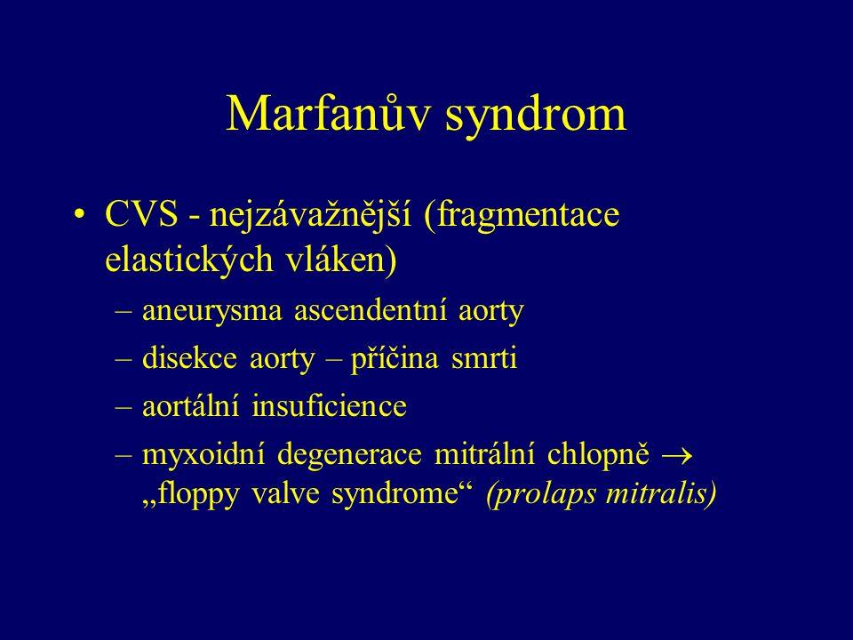 """Marfanův syndrom CVS - nejzávažnější (fragmentace elastických vláken) –aneurysma ascendentní aorty –disekce aorty – příčina smrti –aortální insuficience –myxoidní degenerace mitrální chlopně  """"floppy valve syndrome (prolaps mitralis)"""