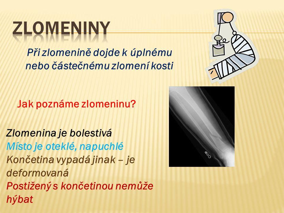 Při zlomenině dojde k úplnému nebo částečnému zlomení kosti Jak poznáme zlomeninu? Zlomenina je bolestivá Místo je oteklé, napuchlé Končetina vypadá j