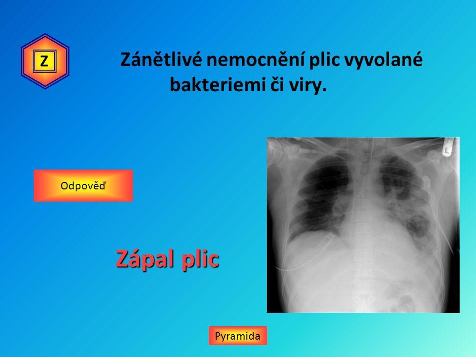 Zánětlivé nemocnění plic vyvolané bakteriemi či viry. Zápal plic Pyramida Odpověď Z