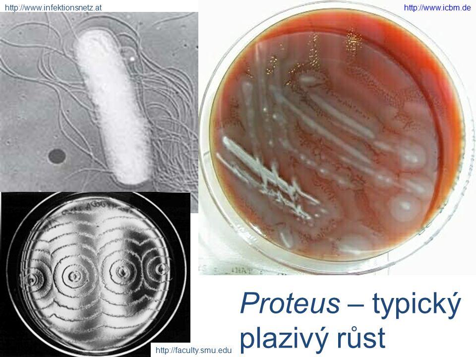Proteus – typický plazivý růst http://www.infektionsnetz.athttp://www.icbm.de http://faculty.smu.edu