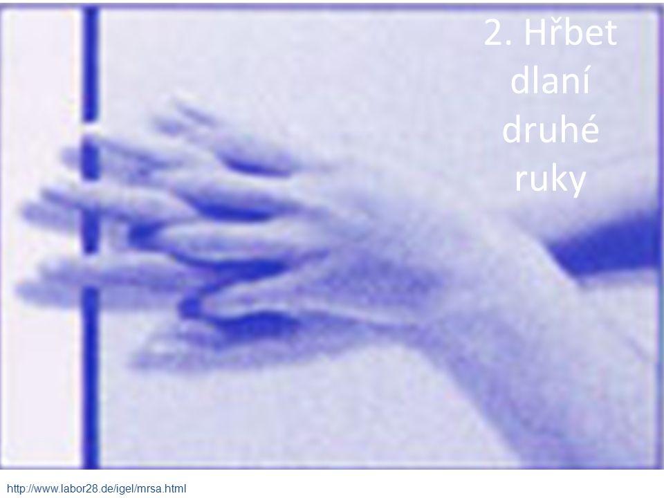 2. Hřbet dlaní druhé ruky http://www.labor28.de/igel/mrsa.html