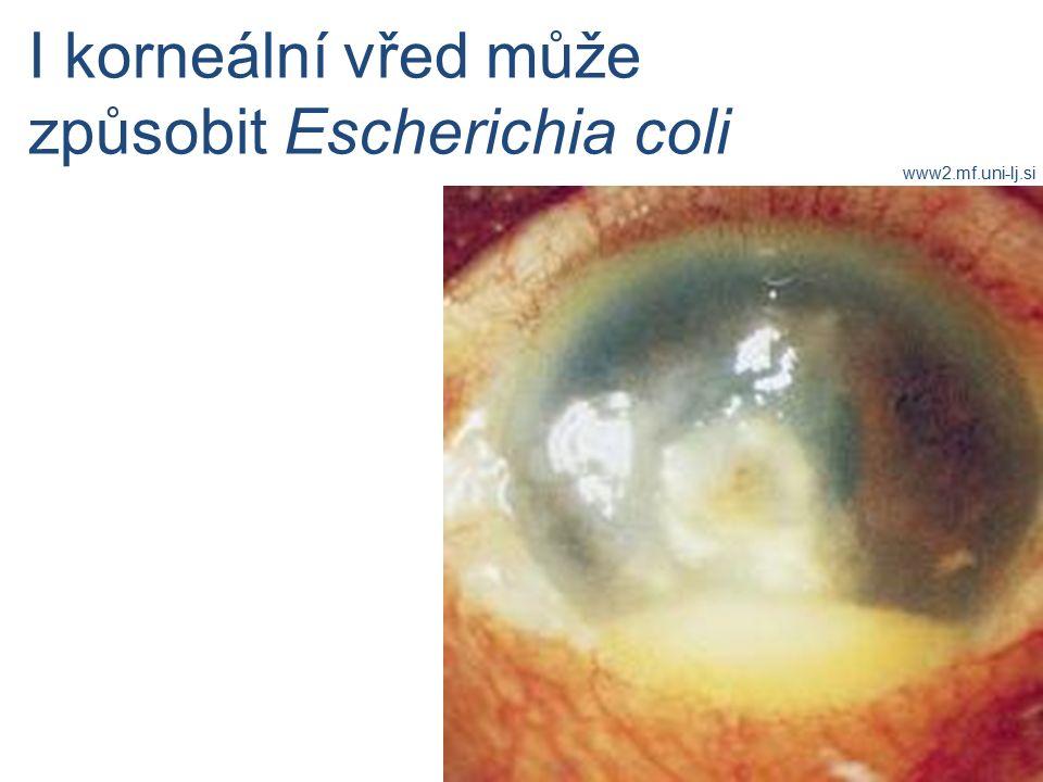 I korneální vřed může způsobit Escherichia coli www2.mf.uni-lj.si