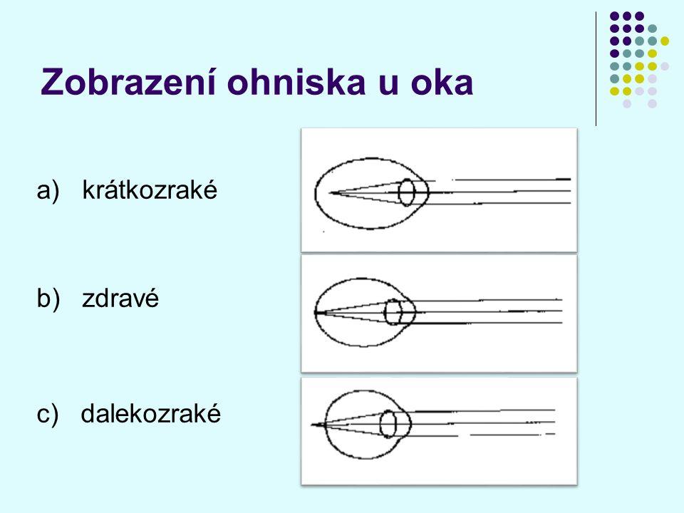 Zobrazení ohniska u oka a) krátkozraké b) zdravé c) dalekozraké