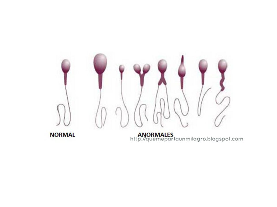 Léčba  Důležité najít konkrétní příčinu neplodnosti  U 10% párů se příčinu nepodaří nalézt  Metody: chirurgický zákrok, hormonální léčba, antibiotika  Úprava životního stylu – především vliv na kvalitu spermií (alkohol, kouření, vitamíny – E,C)  Asistovaná reprodukce