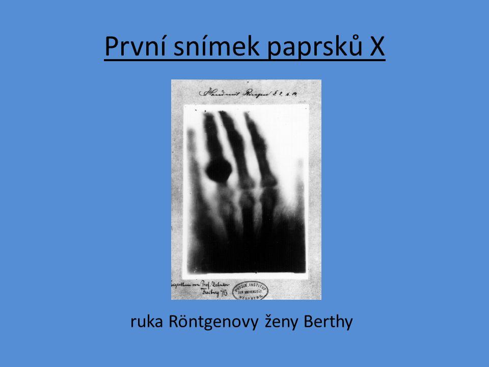 První snímek paprsků X ruka Röntgenovy ženy Berthy