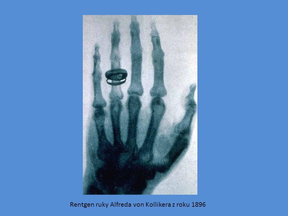 Rentgen ruky Alfreda von Kollikera z roku 1896