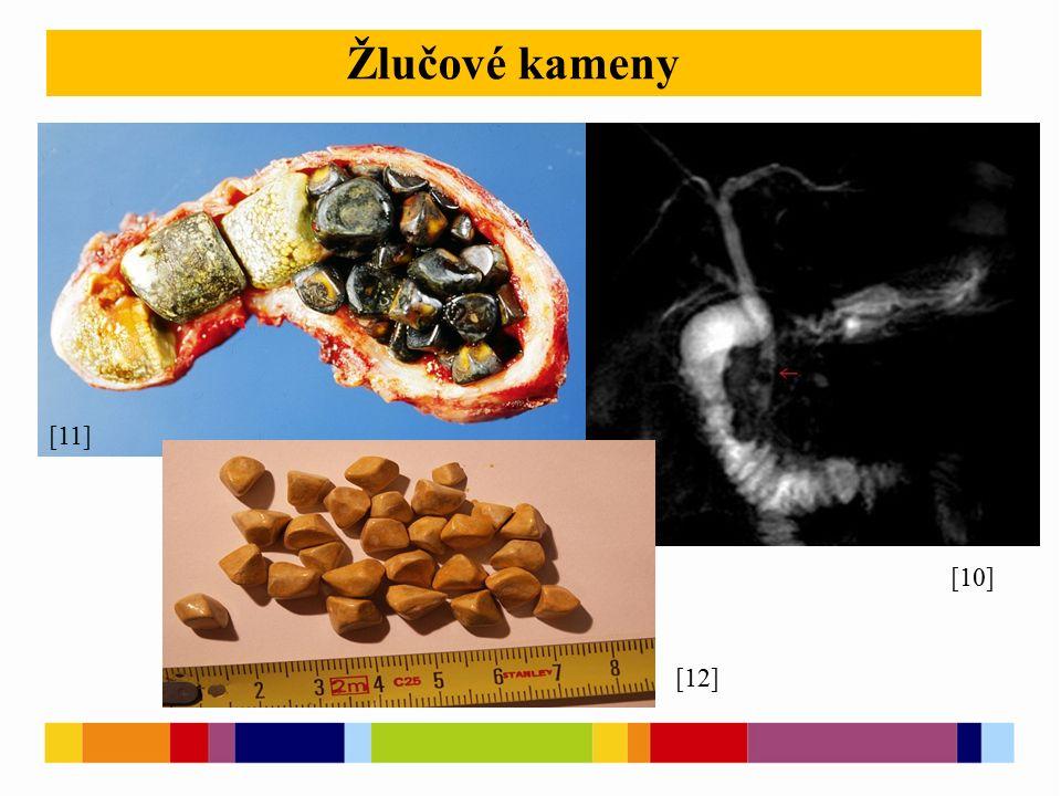 [10] Žlučové kameny [11] [12]