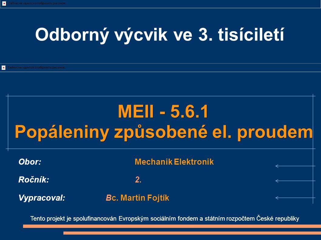 Tento projekt je spolufinancován Evropským sociálním fondem a státním rozpočtem České republiky MEII - 5.6.1 Popáleniny způsobené el. proudem Obor:Mec