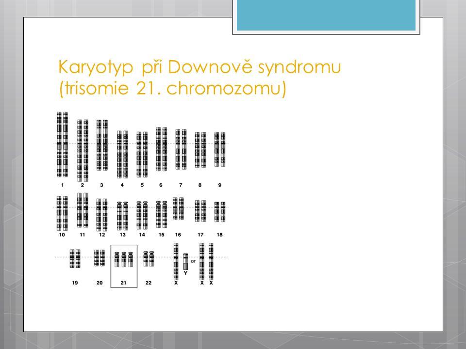Karyotyp při Downově syndromu (trisomie 21. chromozomu)