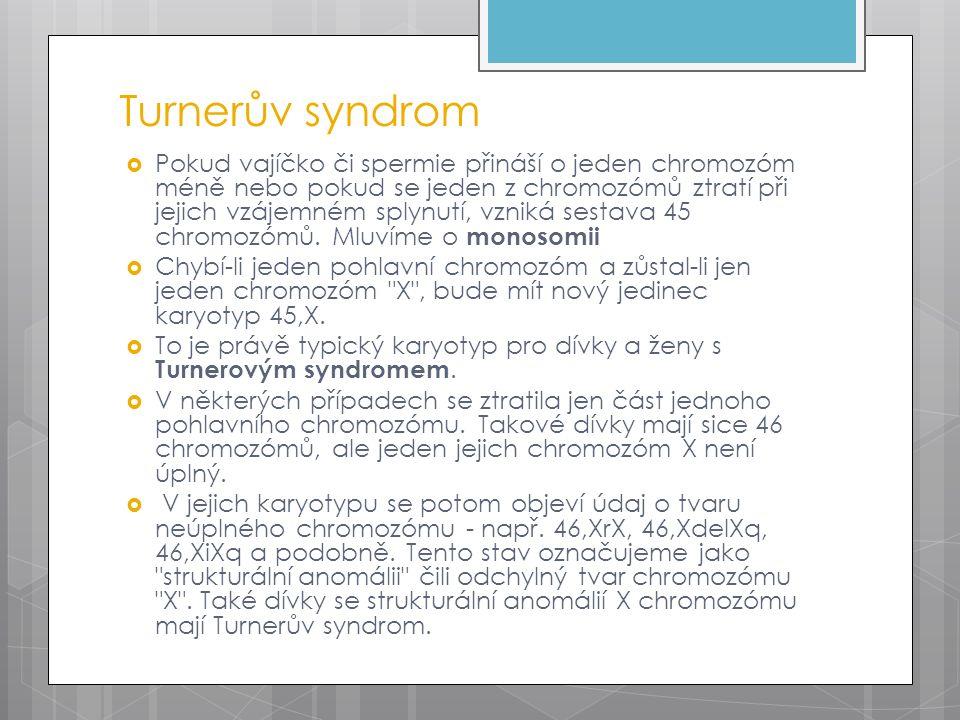 Turnerův syndrom  Pokud vajíčko či spermie přináší o jeden chromozóm méně nebo pokud se jeden z chromozómů ztratí při jejich vzájemném splynutí, vzniká sestava 45 chromozómů.