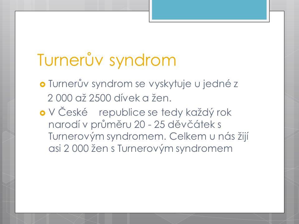 Turnerův syndrom  Turnerův syndrom se vyskytuje u jedné z 2 000 až 2500 dívek a žen.  V České republice se tedy každý rok narodí v průměru 20 - 25 d