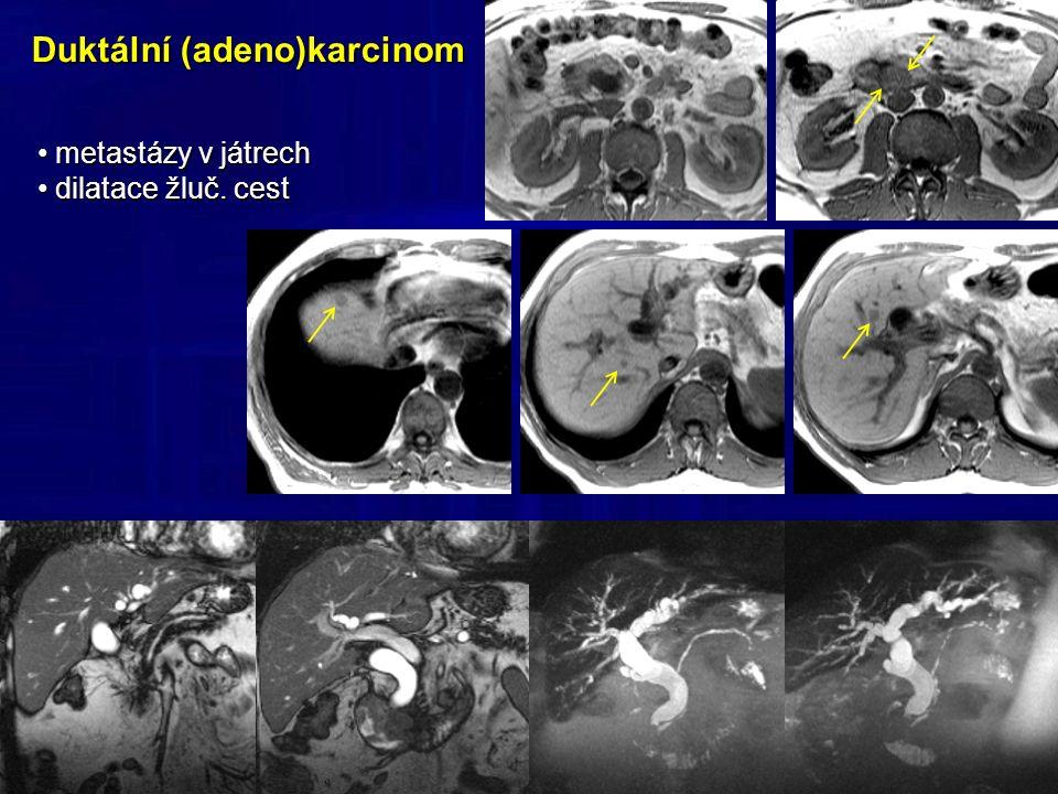 Duktální (adeno)karcinom metastázy v játrech metastázy v játrech dilatace žluč.