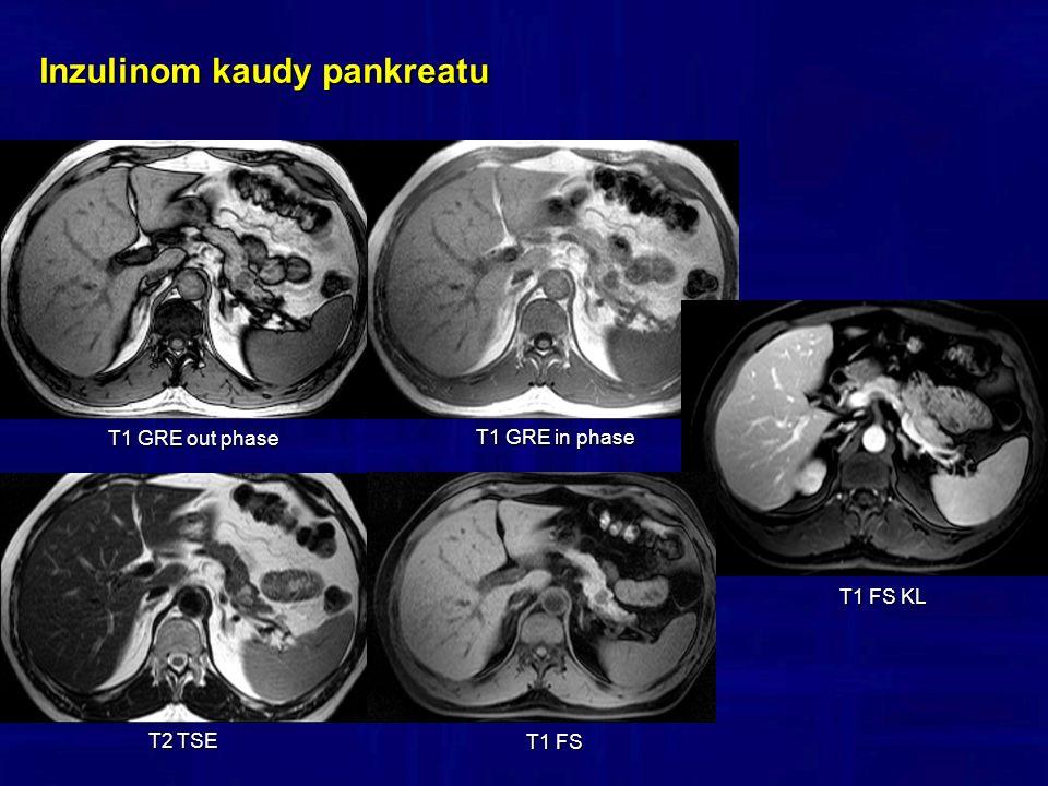 Inzulinom kaudy pankreatu T1 GRE in phase T2 TSE T1 GRE out phase T1 FS T1 FS KL