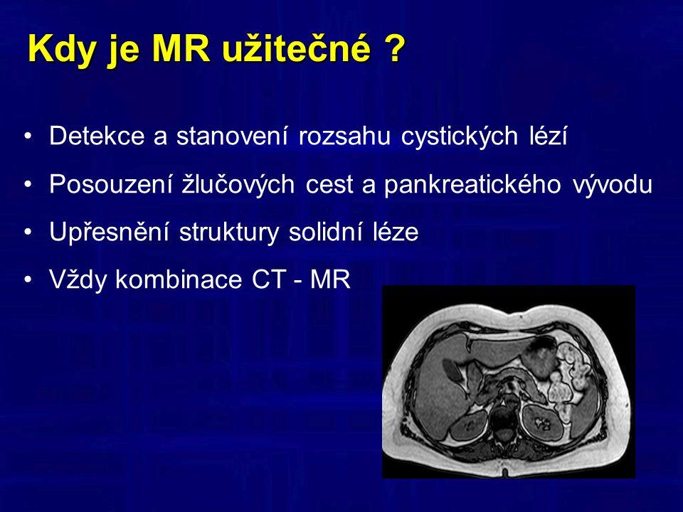 Kdy je MR užitečné .