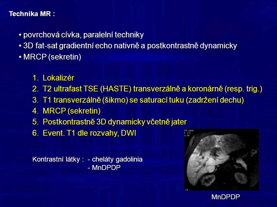 Tumory – Serózní (mikrocystický) cystadenom benigní tumor vycházející z acinárních buněk benigní tumor vycházející z acinárních buněk velká (5-10 cm) houbovitá masa v oblasti hlavy pankreatu velká (5-10 cm) houbovitá masa v oblasti hlavy pankreatu kalcifikace, centrální jizva kalcifikace, centrální jizva sycení jemných sept sycení jemných sept dilatace vývodu dilatace vývodu T2 TSE MRCP