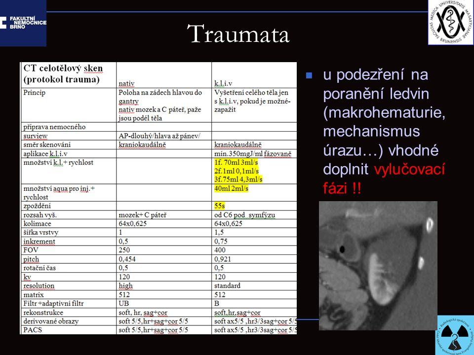 Traumata u podezření na poranění ledvin (makrohematurie, mechanismus úrazu…) vhodné doplnit vylučovací fázi !!