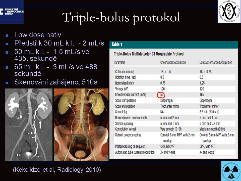 Triple-bolus protokol Low dose nativ Předstřik 30 mL k.l.