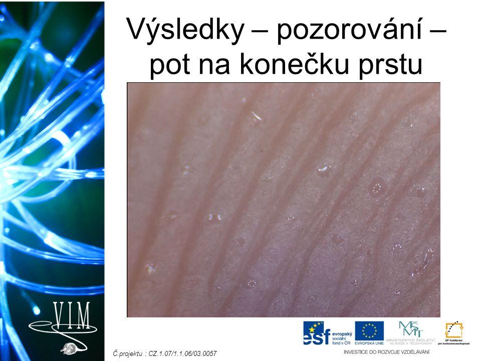 Č.projektu : CZ.1.07/1.1.06/03.0057 Výsledky – pozorování – pot na konečku prstu