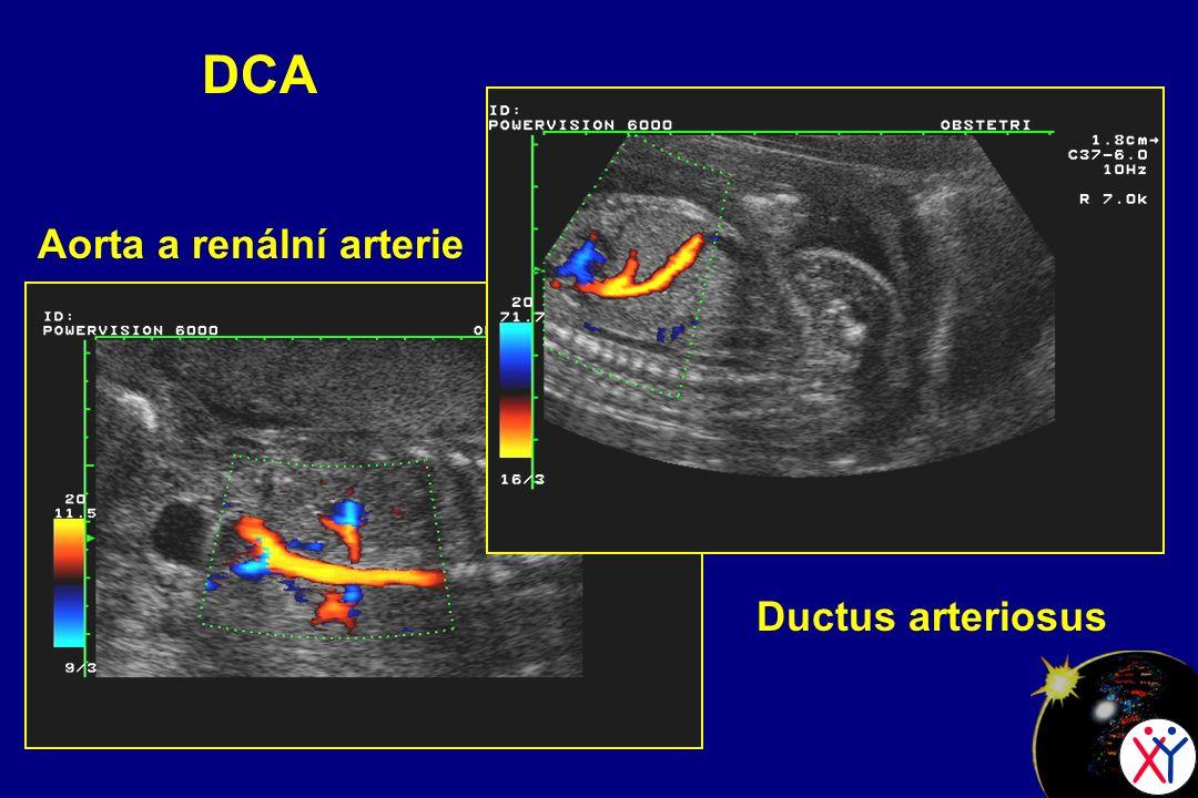 DCA Aorta a renální arterie Ductus arteriosus