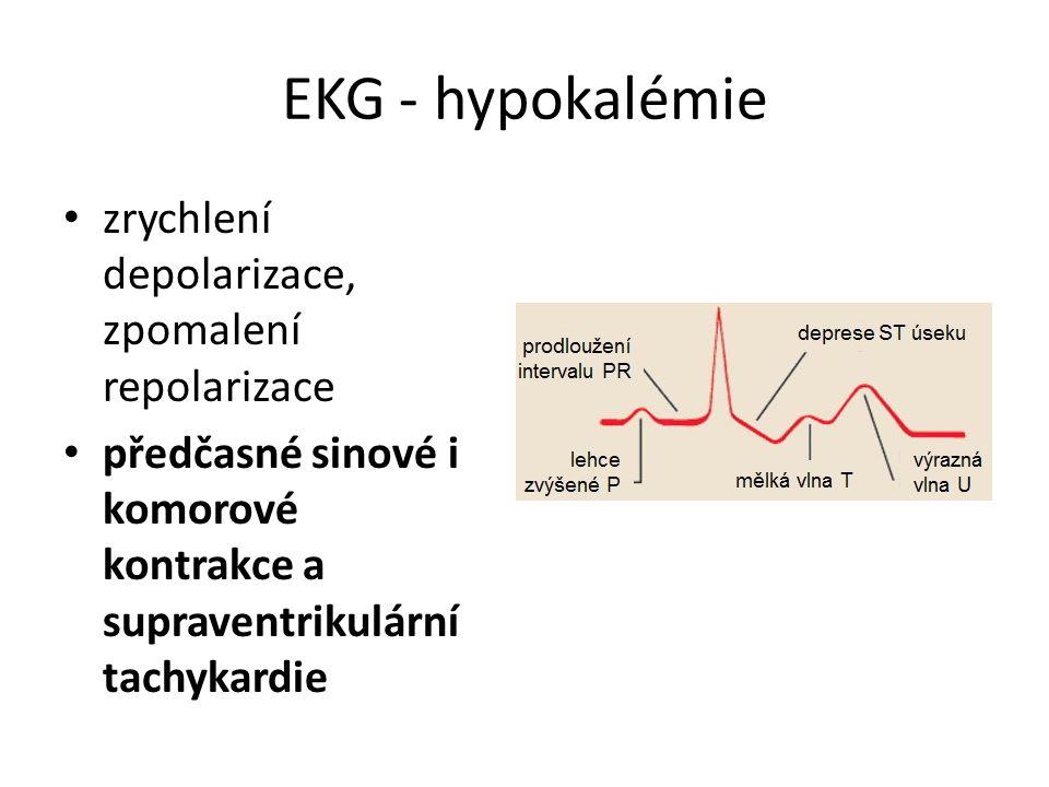 EKG - hypokalémie zrychlení depolarizace, zpomalení repolarizace předčasné sinové i komorové kontrakce a supraventrikulární tachykardie