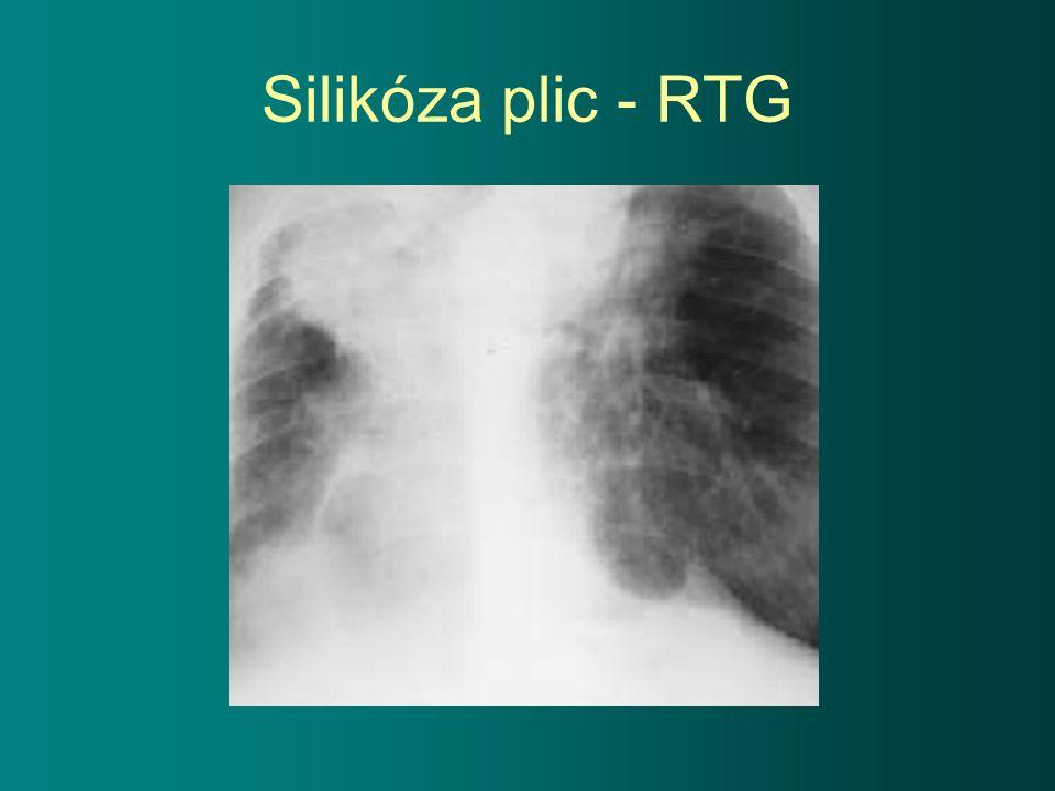 Silikóza plic - RTG