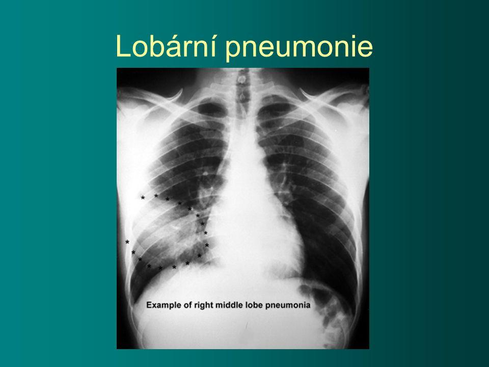 Lobární pneumonie