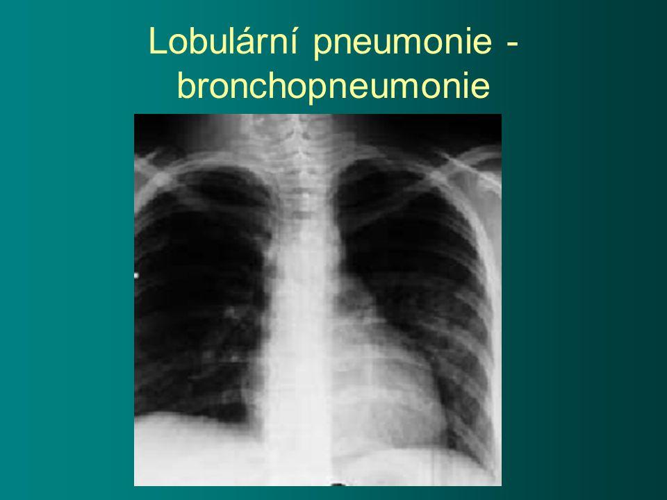 Lobulární pneumonie - bronchopneumonie