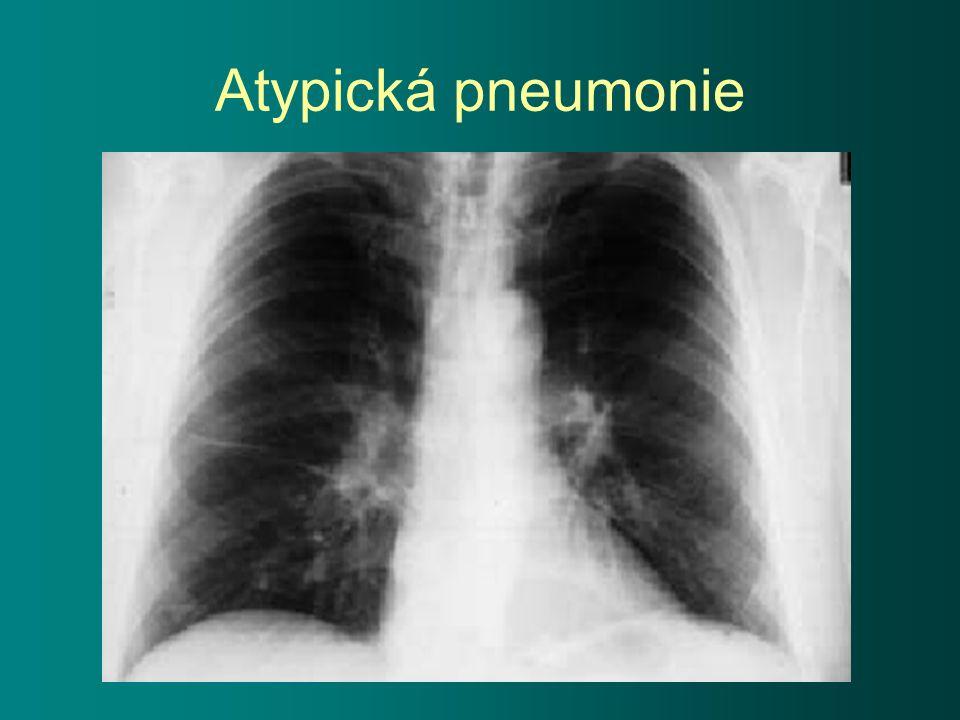 Atypická pneumonie