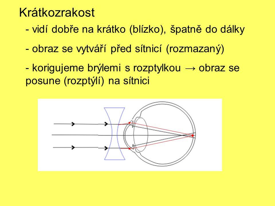 - vidí dobře na krátko (blízko), špatně do dálky - obraz se vytváří před sítnicí (rozmazaný) - korigujeme brýlemi s rozptylkou → obraz se posune (rozptýlí) na sítnici Krátkozrakost