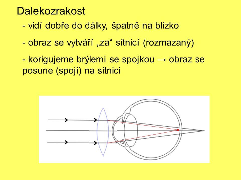 """- vidí dobře do dálky, špatně na blízko - obraz se vytváří """"za sítnicí (rozmazaný) - korigujeme brýlemi se spojkou → obraz se posune (spojí) na sítnici Dalekozrakost"""