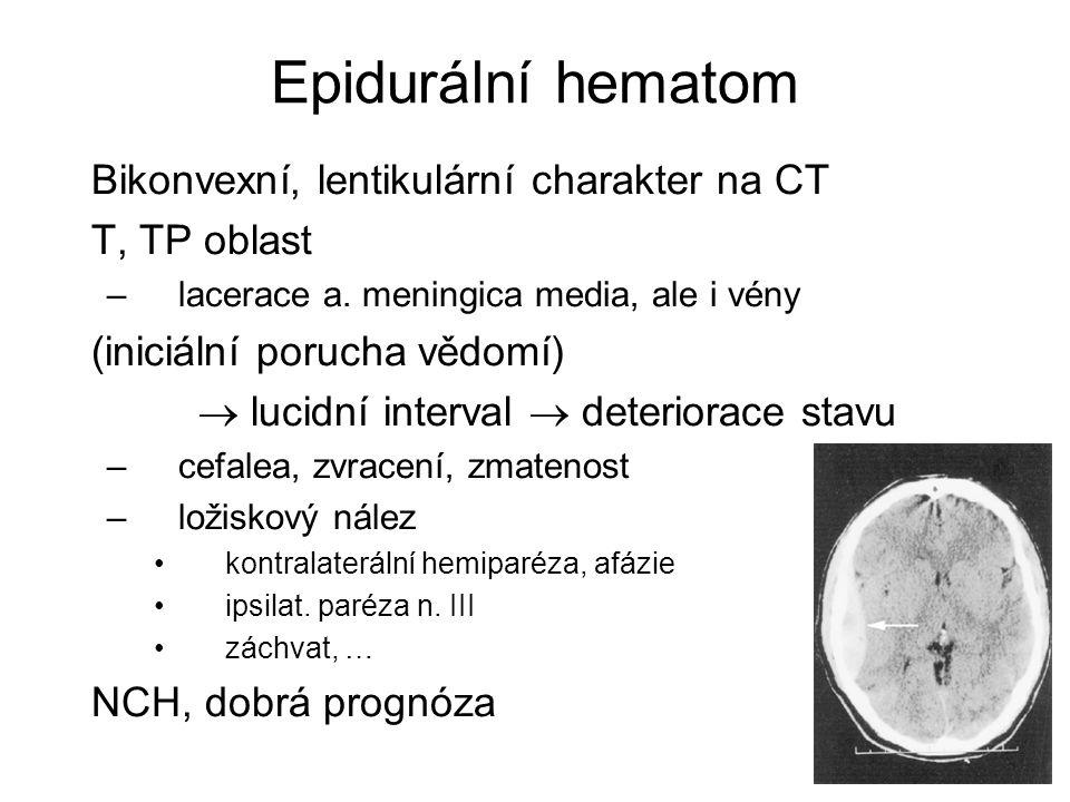 Epidurální hematom Bikonvexní, lentikulární charakter na CT T, TP oblast –lacerace a. meningica media, ale i vény (iniciální porucha vědomí)  lucidní
