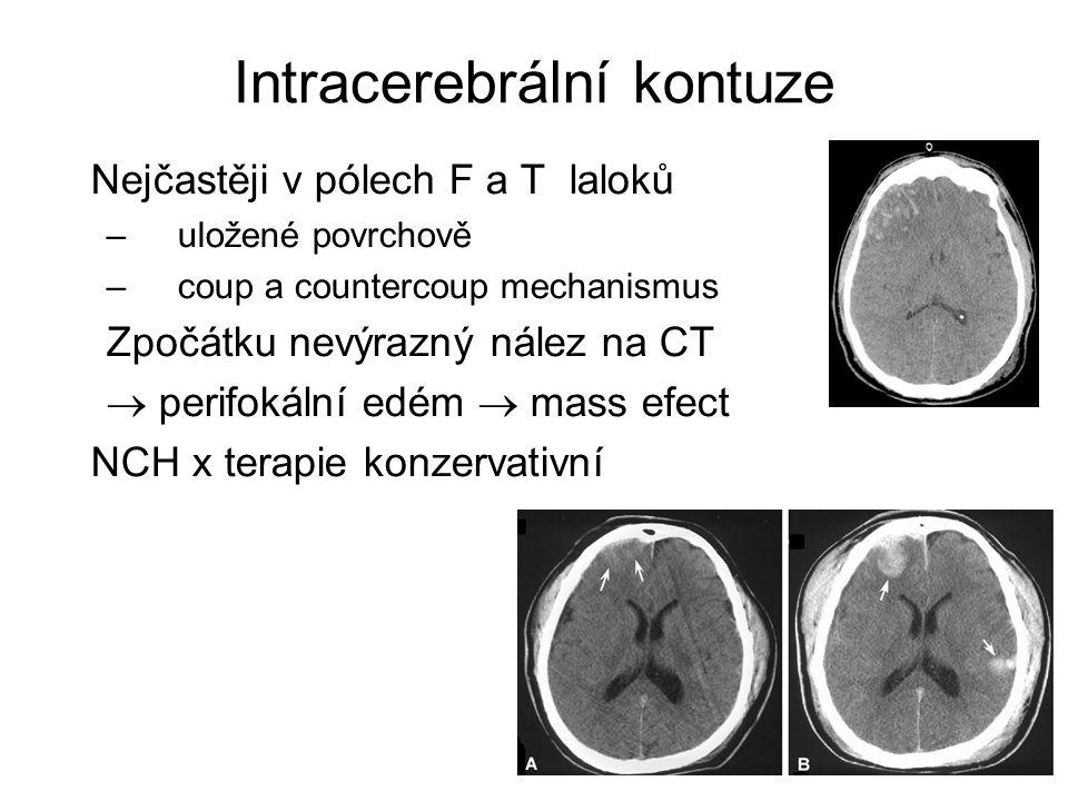 Intracerebrální kontuze Nejčastěji v pólech F a T laloků –uložené povrchově –coup a countercoup mechanismus Zpočátku nevýrazný nález na CT  perifokál
