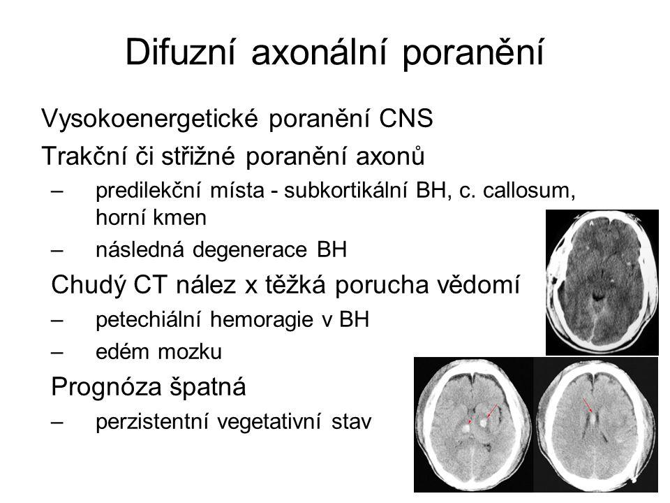 Difuzní axonální poranění Vysokoenergetické poranění CNS Trakční či střižné poranění axonů –predilekční místa - subkortikální BH, c. callosum, horní k