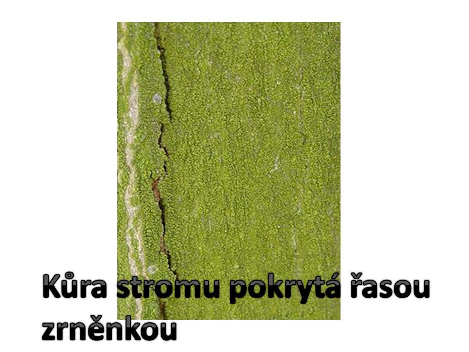 Pouhým okem nedokážeme tělo zrněnky rozlišit, musíme ho pozorovat pod mikroskopem.