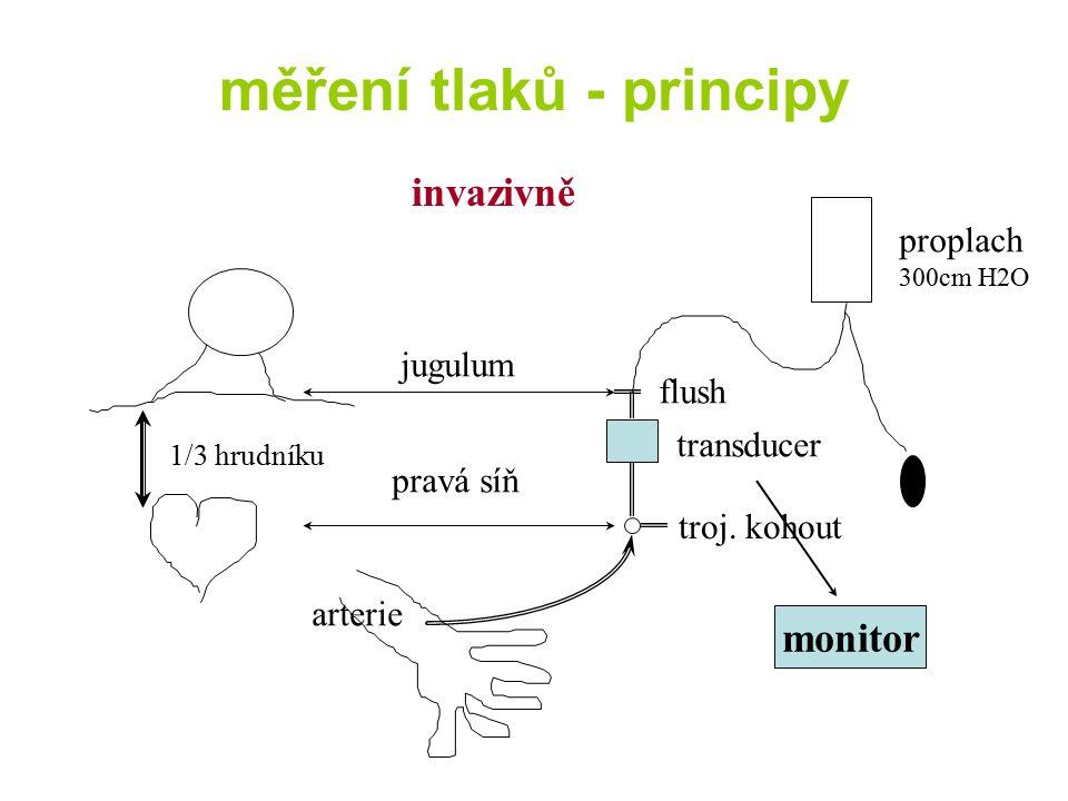 měření tlaků - principy invazivně jugulum flush transducer troj. kohout proplach 300cm H2O pravá síň 1/3 hrudníku arterie monitor