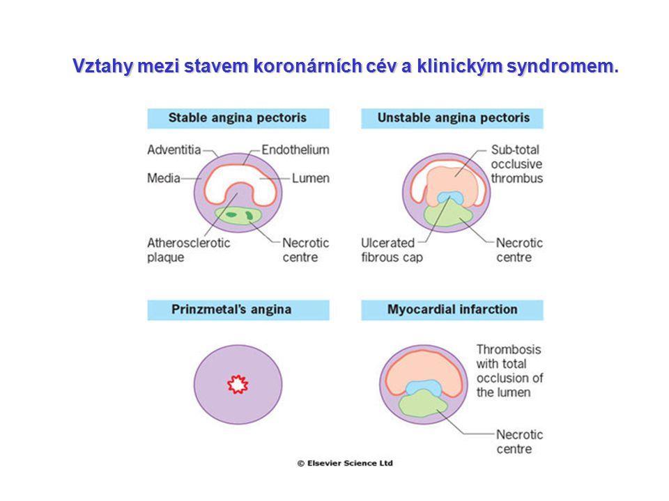 Vztahy mezi stavem koronárních cév a klinickým syndromem Vztahy mezi stavem koronárních cév a klinickým syndromem.