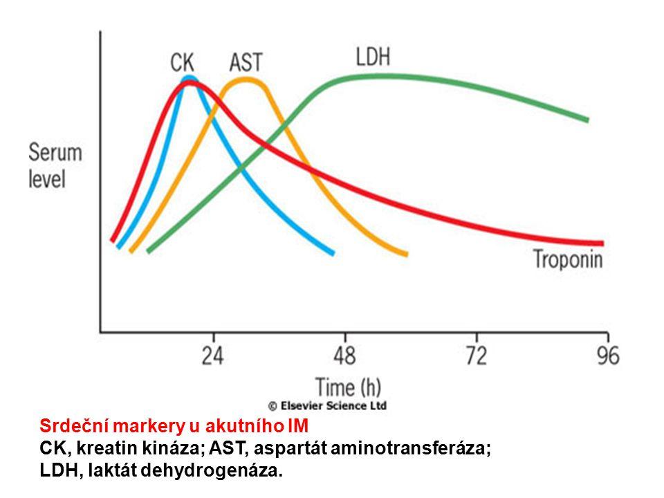 Srdeční markery u akutního IM CK, kreatin kináza; AST, aspartát aminotransferáza; LDH, laktát dehydrogenáza.