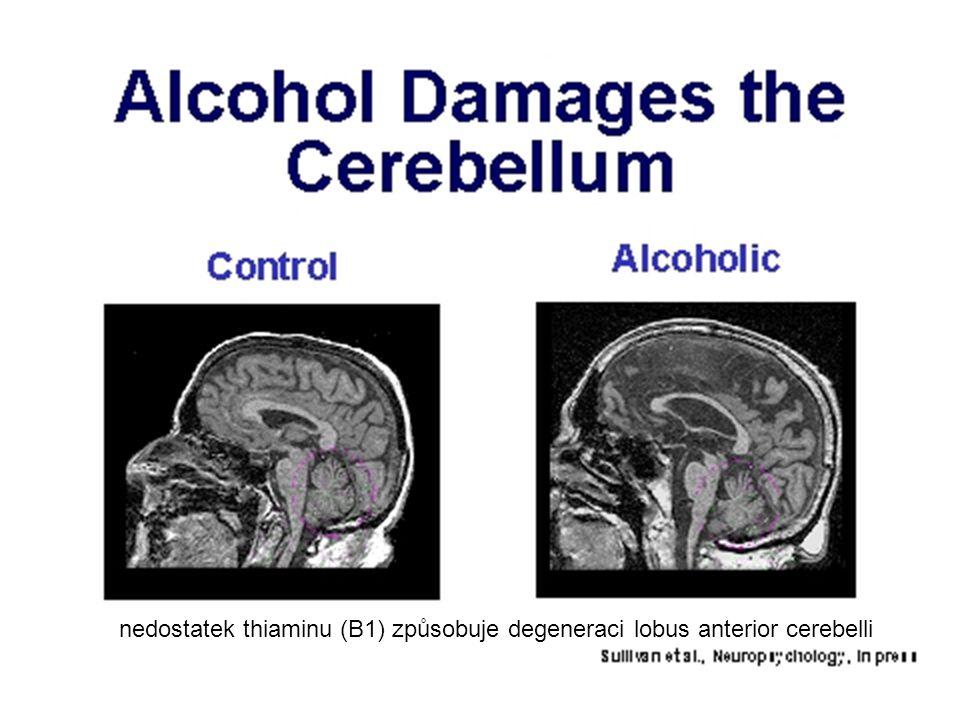 nedostatek thiaminu (B1) způsobuje degeneraci lobus anterior cerebelli