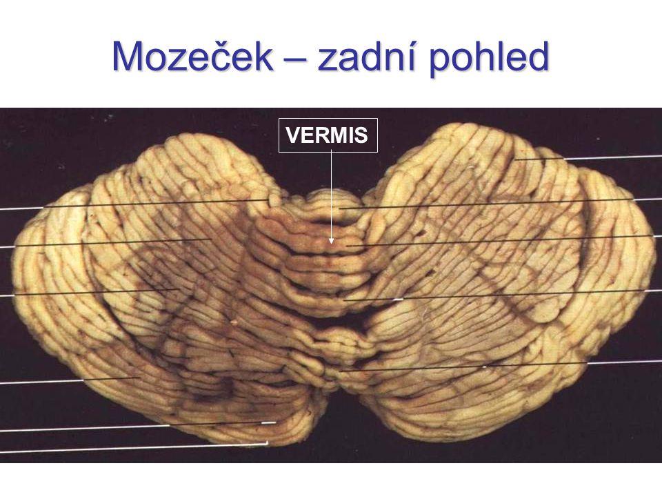 Mozeček – zadní pohled VERMIS