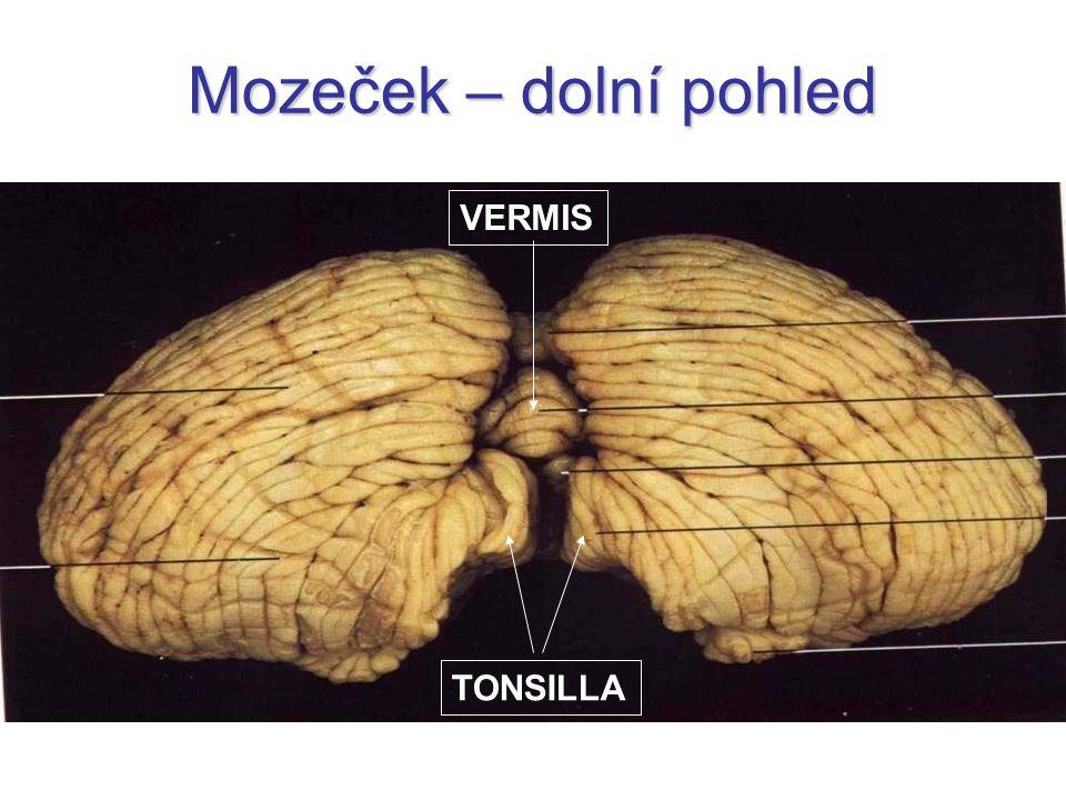 Mozeček – dolní pohled TONSILLA VERMIS