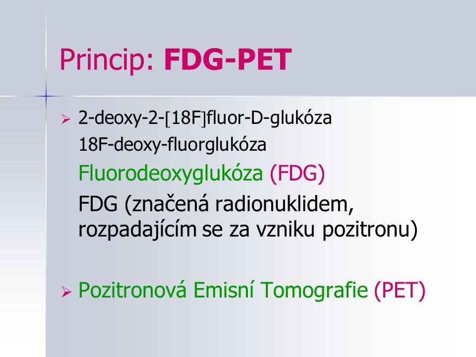 Princip: FDG-PET  2-deoxy-2-  18F  fluor-D-glukóza 18F-deoxy-fluorglukóza Fluorodeoxyglukóza (FDG) FDG (značená radionuklidem, rozpadajícím se za v