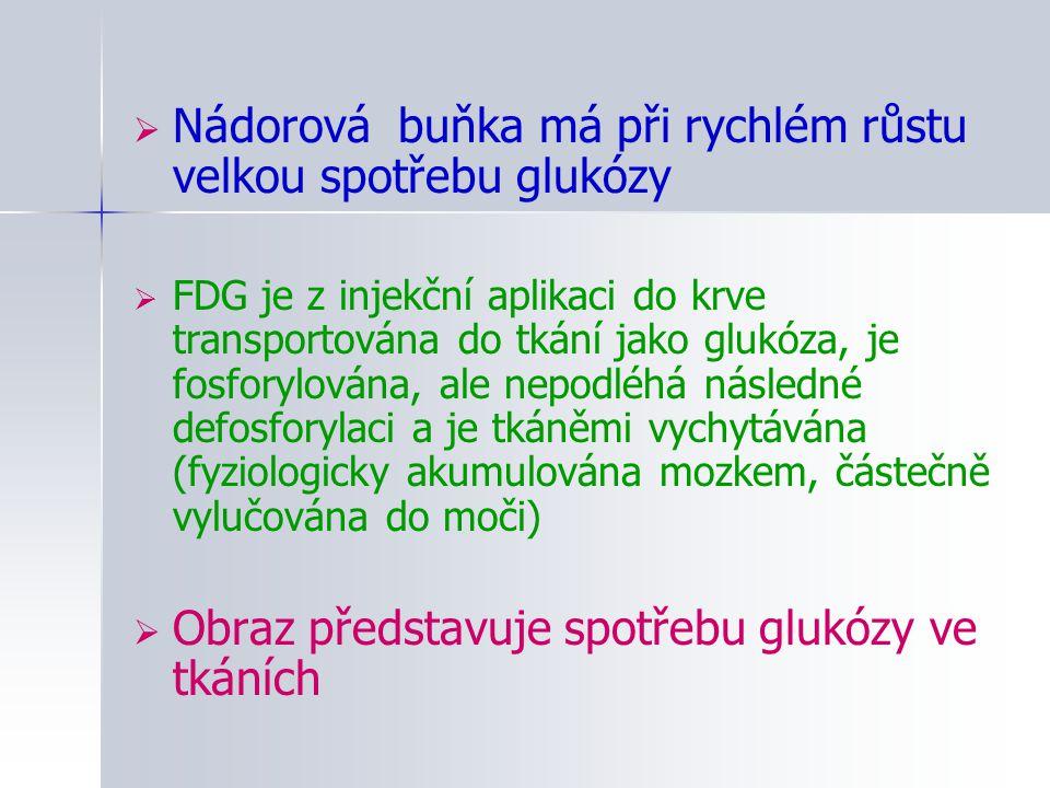 Nádorová buňka má při rychlém růstu velkou spotřebu glukózy  FDG je z injekční aplikaci do krve transportována do tkání jako glukóza, je fosforylov