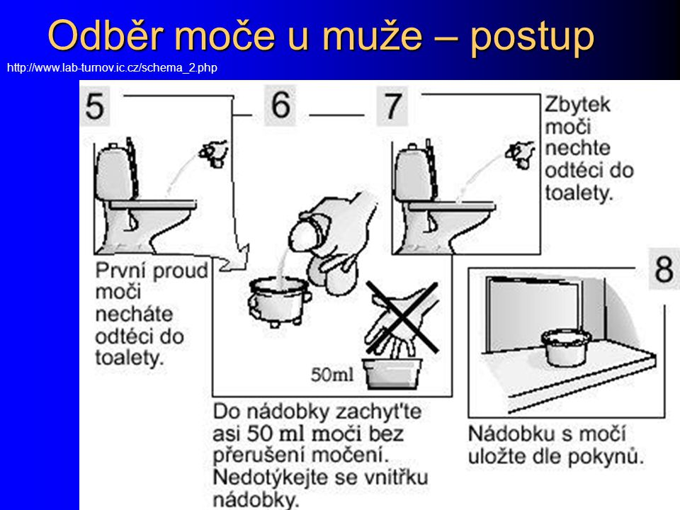 Odběr moče u muže – postup http://www.lab-turnov.ic.cz/schema_2.php